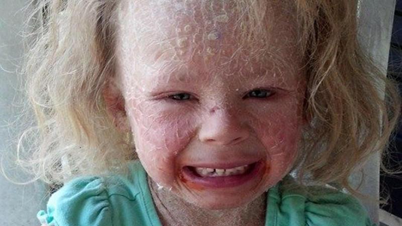 Seltene Hautkrankheit NBIE: Georgia (5) ist am ganzen ...