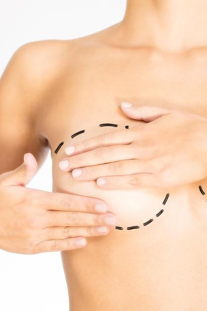 Körbchen brustverkleinerung b Unglücklich nach