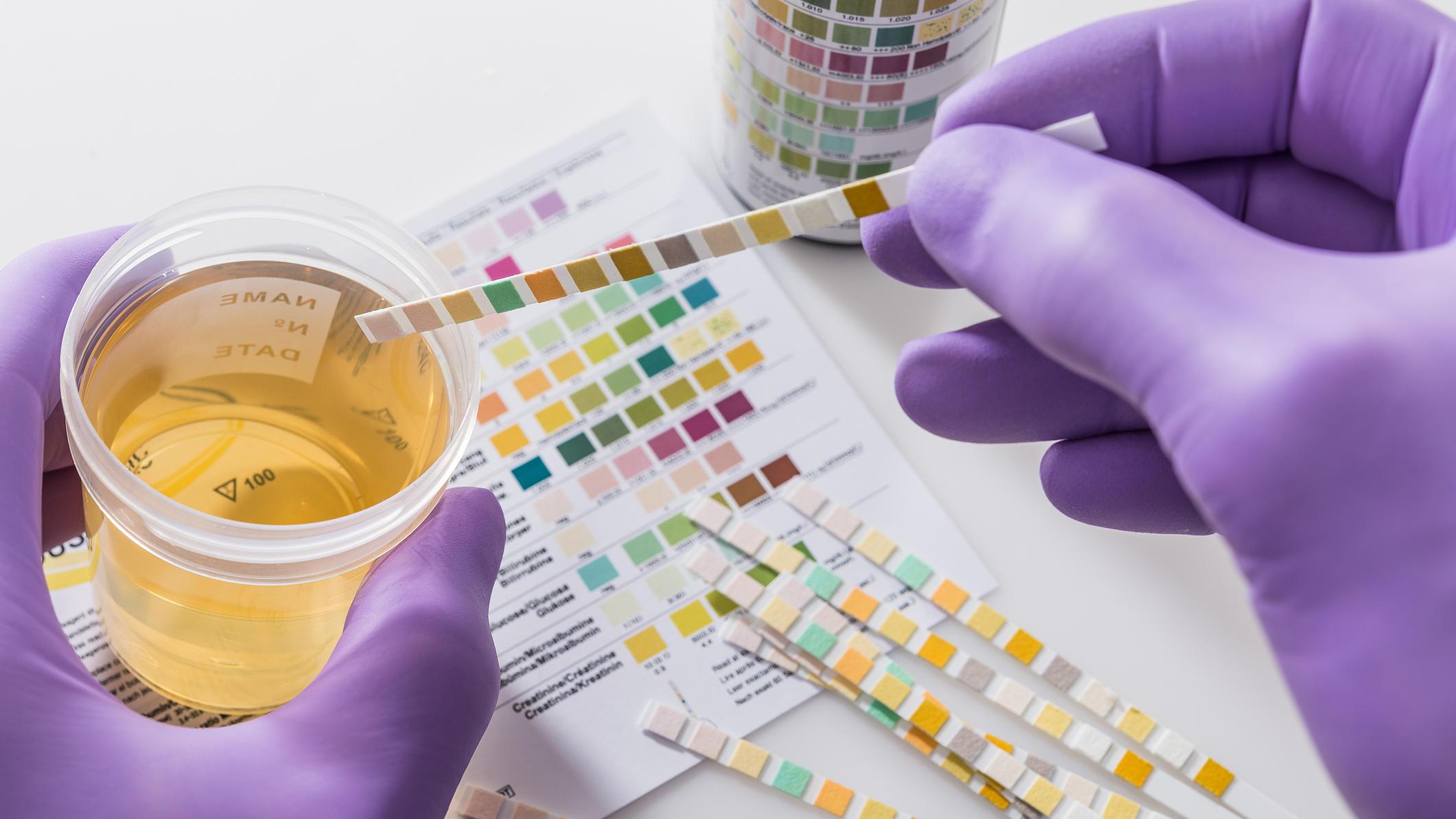 Gesundheitslexikon: Hämaturie (Blut im Urin)