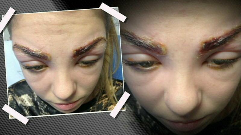 Allergie Gegen Haarfärbemittel Mädchen Erleidet Verletzungen Nach