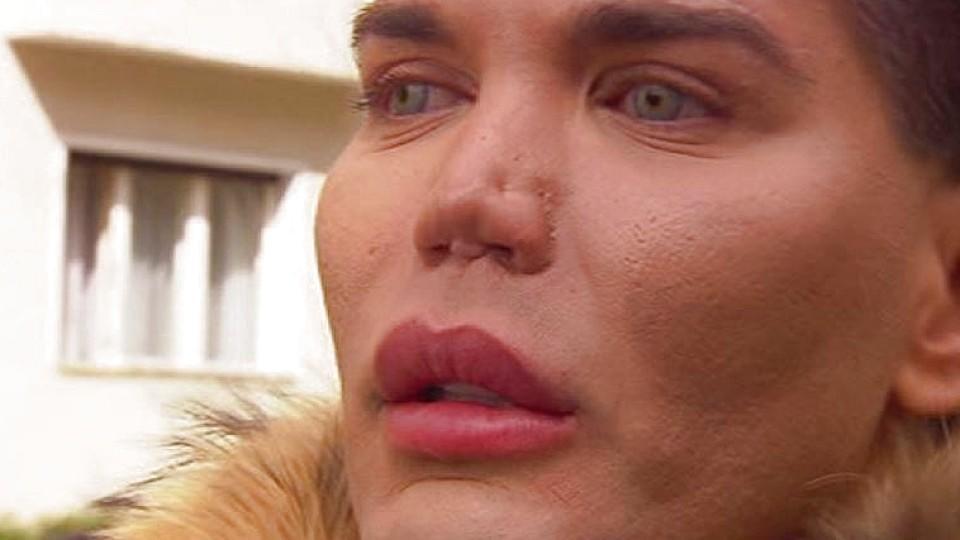 Schock für Ken-Double Rodrigo: Nase löst sich nach OP